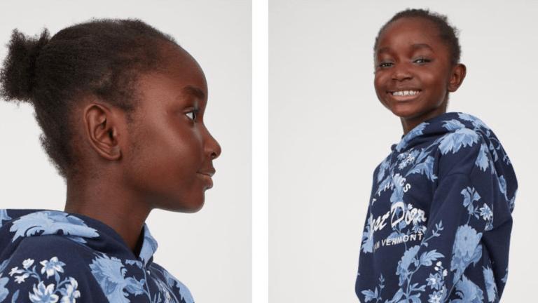 H&M model makes a hair raising introduction